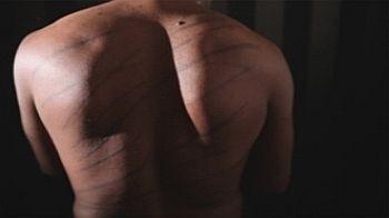 Scars of torture in Sri Lanka. Photo: Channel 4 in London.