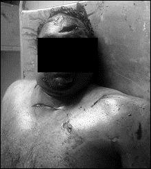 Canadian_Tamil_victim_1_bw_98215_218