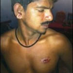 SL military assaults family man after playground dispute in Jaffna
